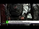 Force feeding at Gitmo branded torture by UN…