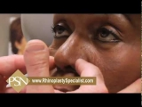 African American Rhinoplasty-Amazing Before & After Results